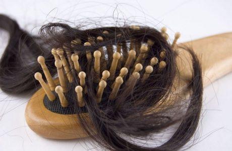 נשירת שיער היא בעיה מוכרת ממנה סובלים רבים –